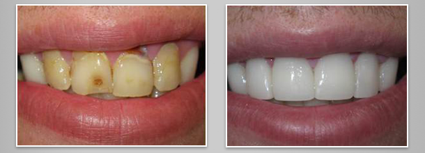 Before after image case8 at Dr. Neu