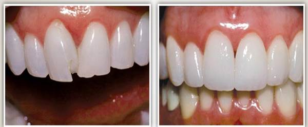 Before after image case1 at Dr. Neu