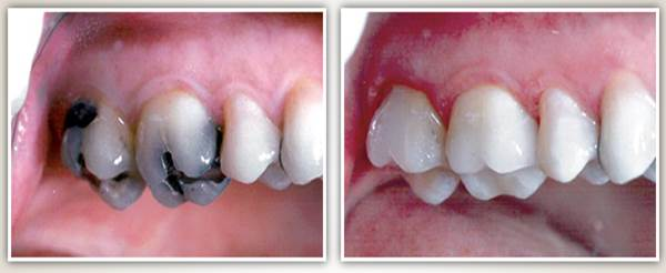 Before after image case2 at Dr. Neu
