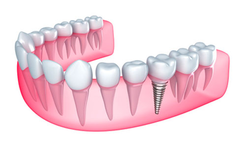 How to Cut the Risk of Dental Implant Failure before Getting Implants